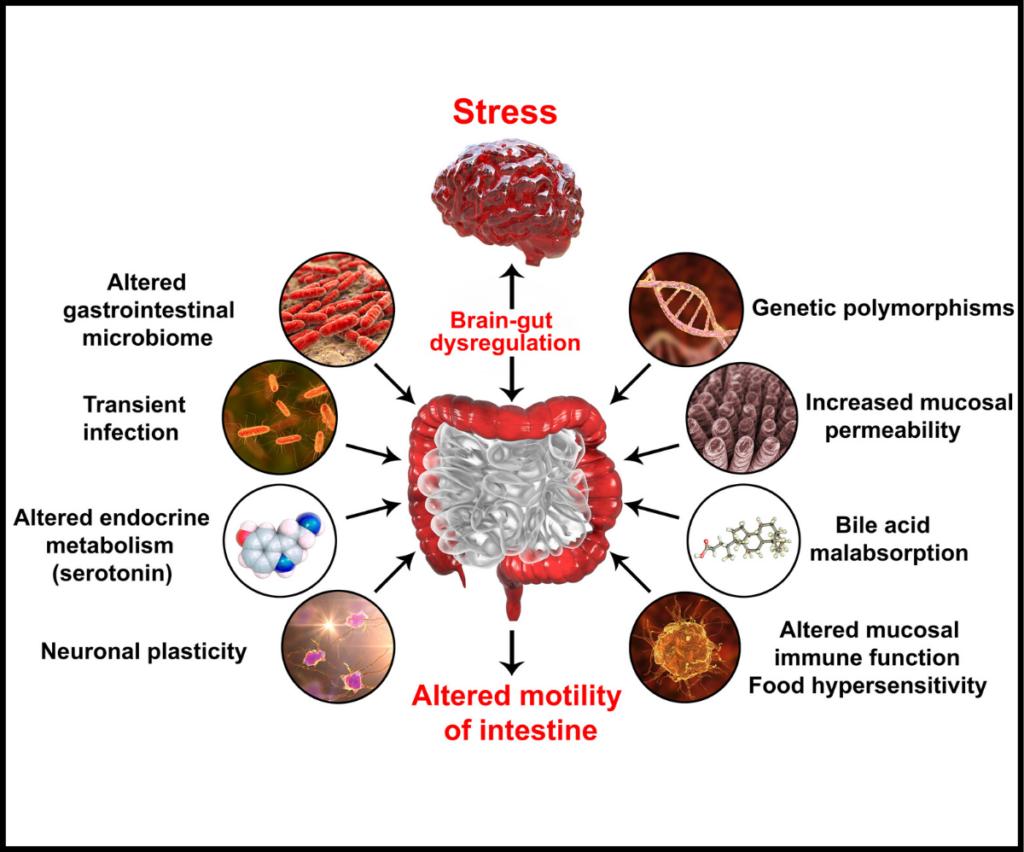 Graphic-describing-how-stress-affect-the-gut